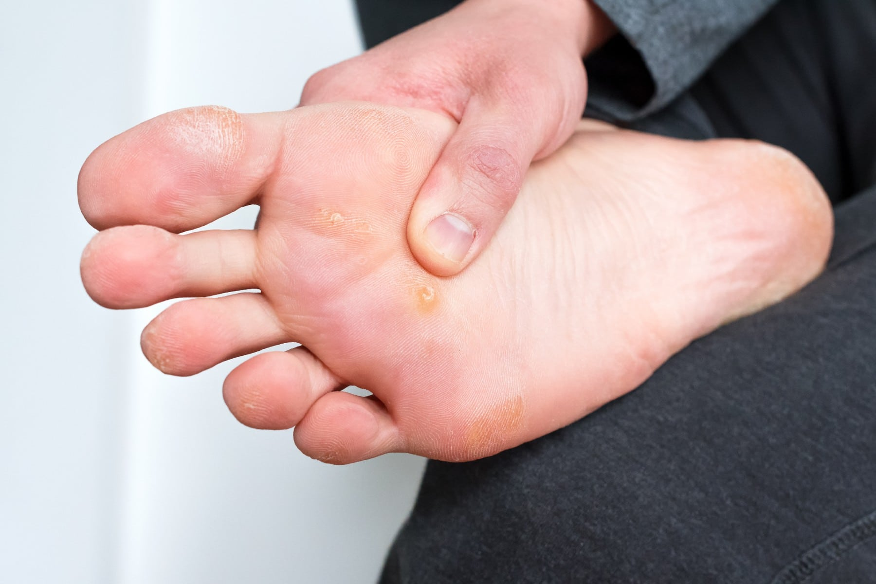 a man with a plantar wart on his foot